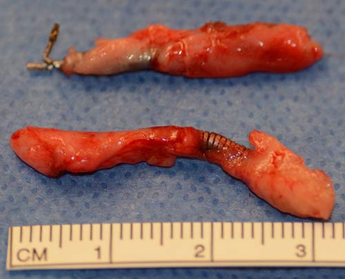 Intact removal of Essure intra-tubal inserts minimizes risk of fragmentation